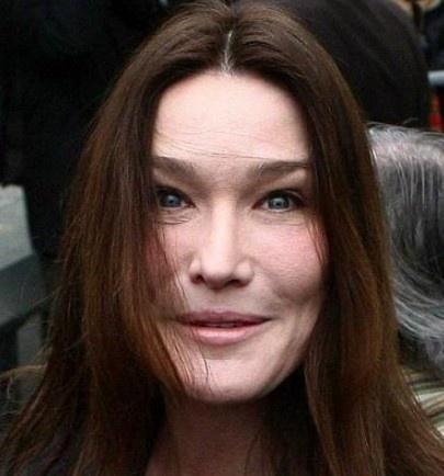 Carla Bruni Plastic Surgery Fail